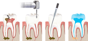 root-canal-300x140.png